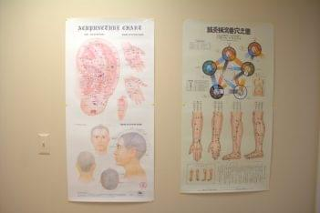 Bayshore Acupuncture and Traditional Medicine Holmdel NJ acupuncture chart