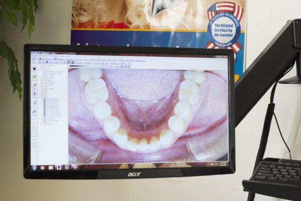 Pierson Dental Sicklerville NJ dentist teeth