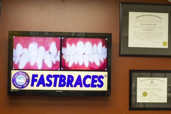 Pierson Dental Sicklerville NJ fast braces