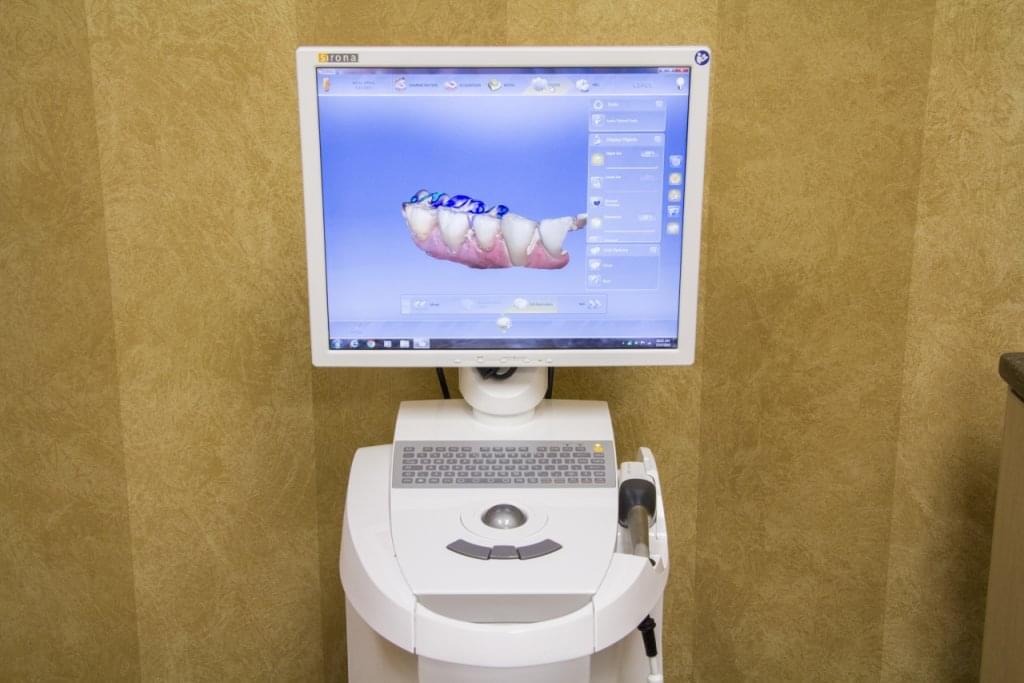 Long Grove Dental Studio Lake Zurich IL cgi teeth model