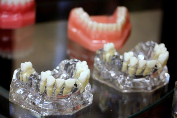 Alpha Dental Excellence Langhorne PA teeth